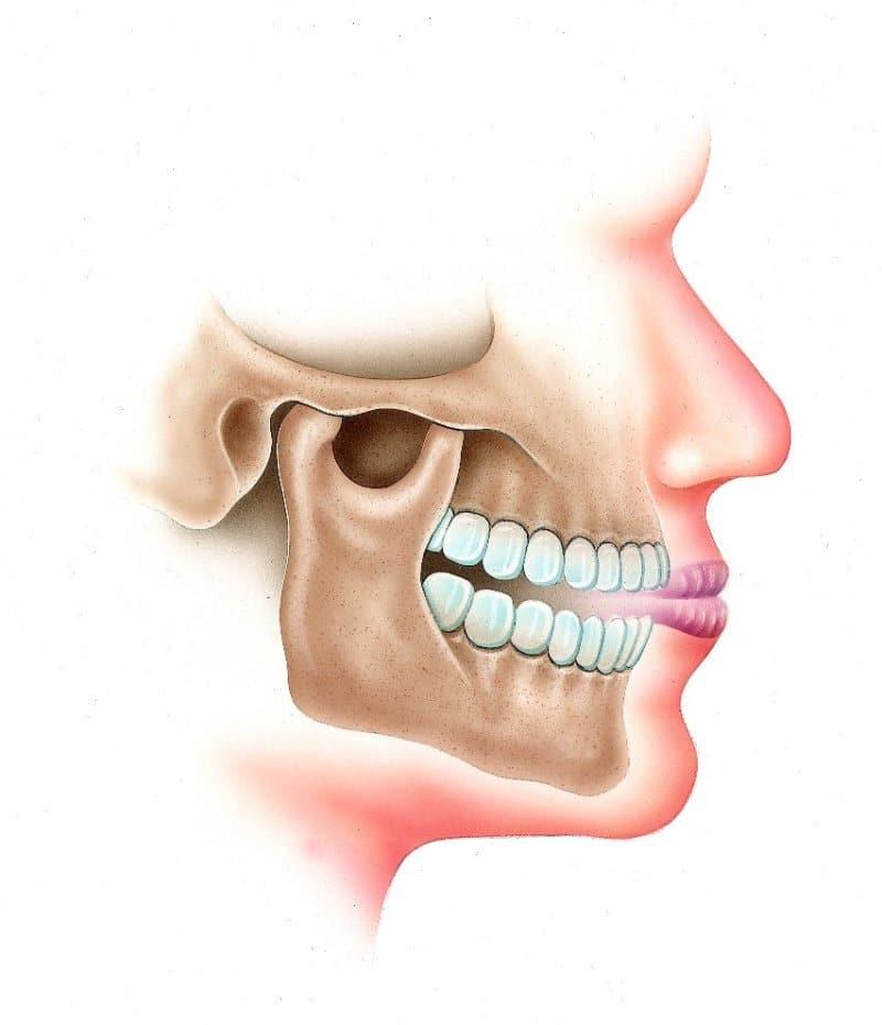 tratament articular al gurii